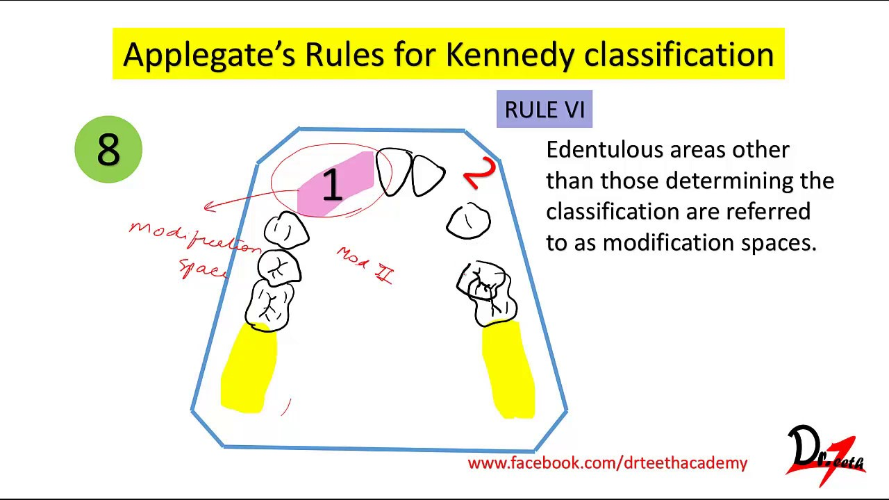 Kennedy's classification, Applegate's rules- Easy! - YouTube