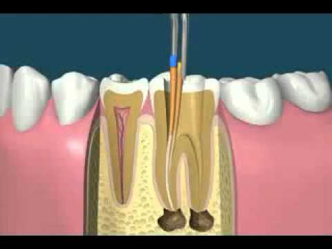 a314979bc ما الذي يفعله طبيب الأسنان اثناء حشوها - YouTube