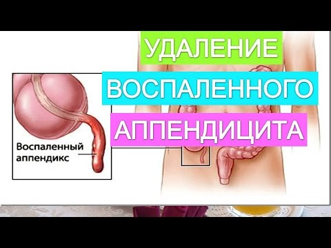 Аппендицит: симптомы и причины аппендицита, методы лечения
