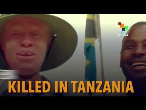 The Hunted Albinos of Tanzania