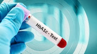 Download lagu What is the Optimal HbA1c Target for Type 2 Diabetes Patients MP3