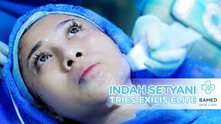 Indah Setyani Tries Exilis Elite | Bamed Skin Care