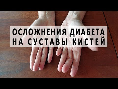 Боль в суставах рук. Распространенные причины и