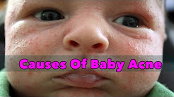 hqdefault - What Causes Baby Acne