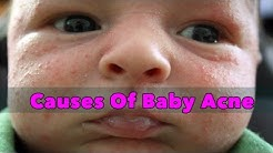 hqdefault - Baby Acne Or Allergy
