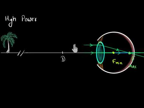 Myopia & Hypermetropia (Hindi) | Human eye and the colourful world | Physics | Khan Academy
