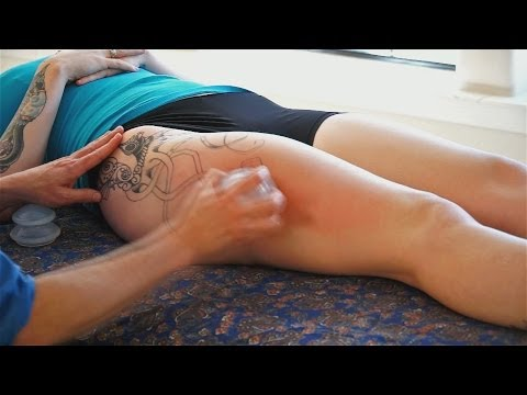 Leg Massage Therapy Techniques - IT Band & Soma Cupping Alternative to Chinese Cupping