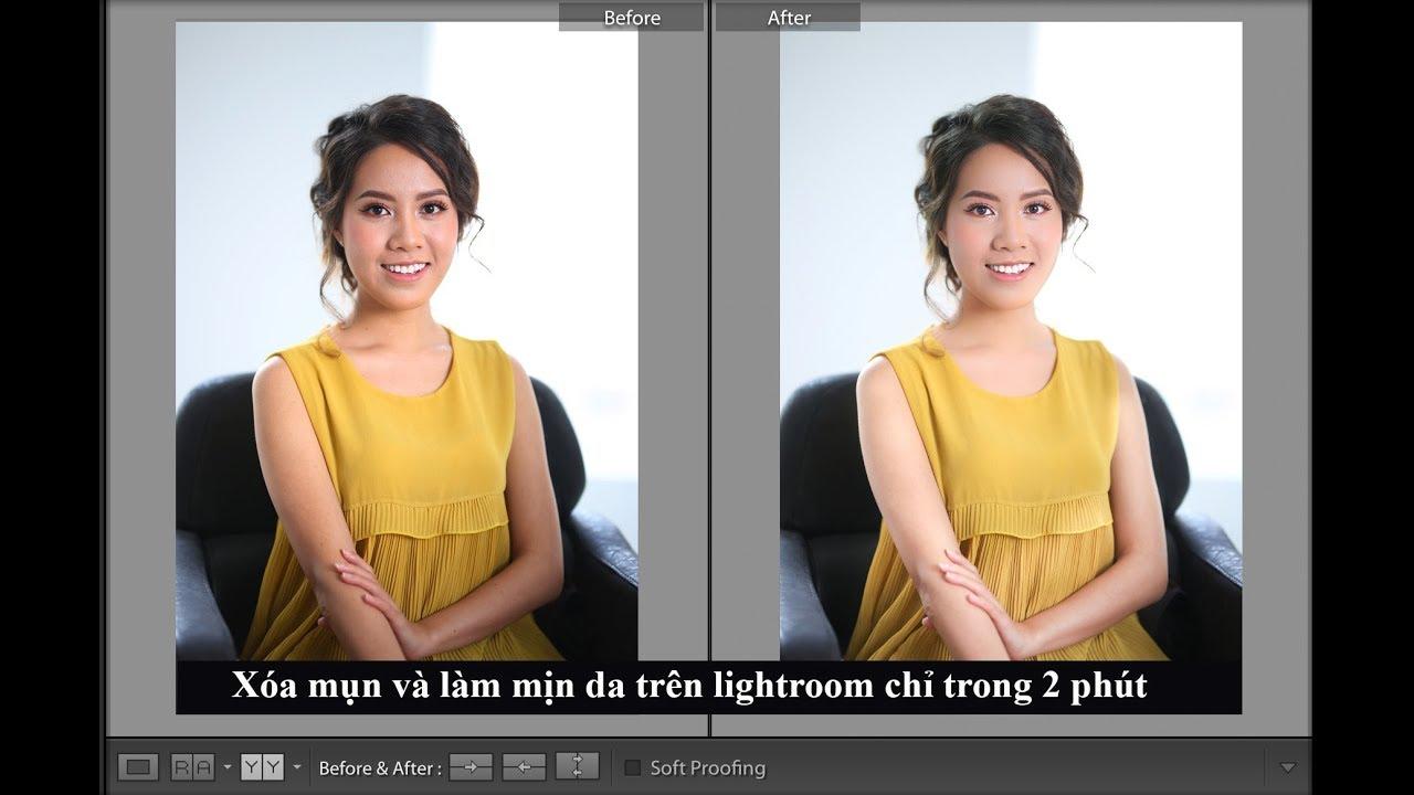 Cách xóa mụn và làm mịn da nhanh trên lightroom chỉ trong 2 phút | Aphoto