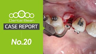 (ENG)Upper premolar simple implant placement and immediate loading