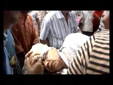 Culture secretary critically injured