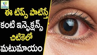 Home Remedies For Eye infections - Eye care Tips in Telugu || Mana Arogyam