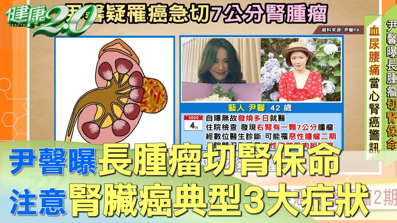 尹韾曝長腫瘤切腎保命 注意腎臟癌典型3大症狀 健康2.0