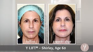Y LIFT ® 2013 - Shirley | Instant, Non Surgical Facelift