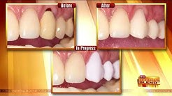 Get New Dental Crowns in Just an Hour
