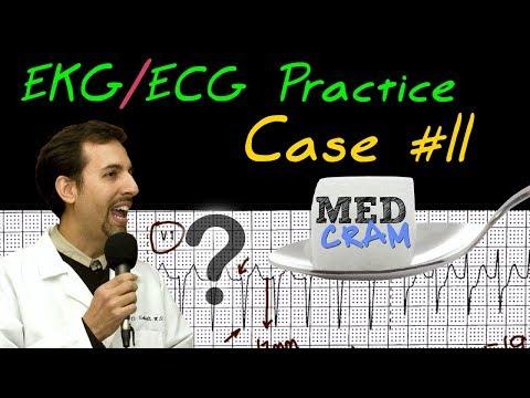 EKG  ECG Interpretation Explained Clearly - Practice Case 11