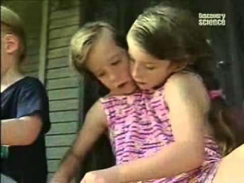 Девочки сиамские близнецы.wmv