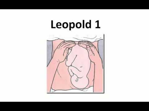 Pemeriksaan Leopold