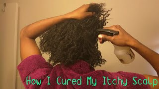 How Cured My Itchy Scalp Naturally Apple Cider Vinegar Rinse Dreadlocks Locs Dreads