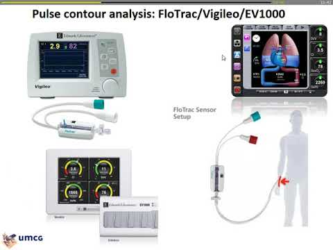 12 Cardiac Output Monitoring  Invasive Or Non Invasive Thomas Scheeren  (H_dyn2017)