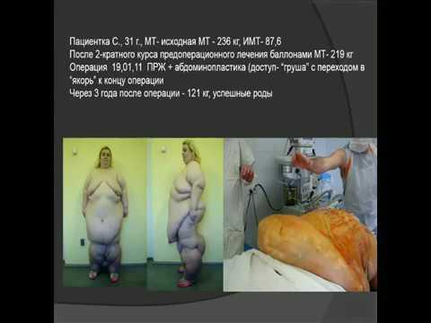 Бордан Н.С. -  Многоцелевая абдоминопластика в хирургии ожирения