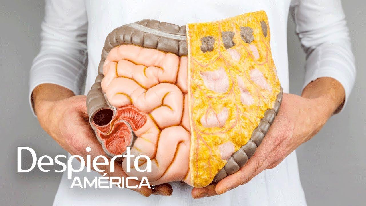 síntomas de cáncer de colon y estómago