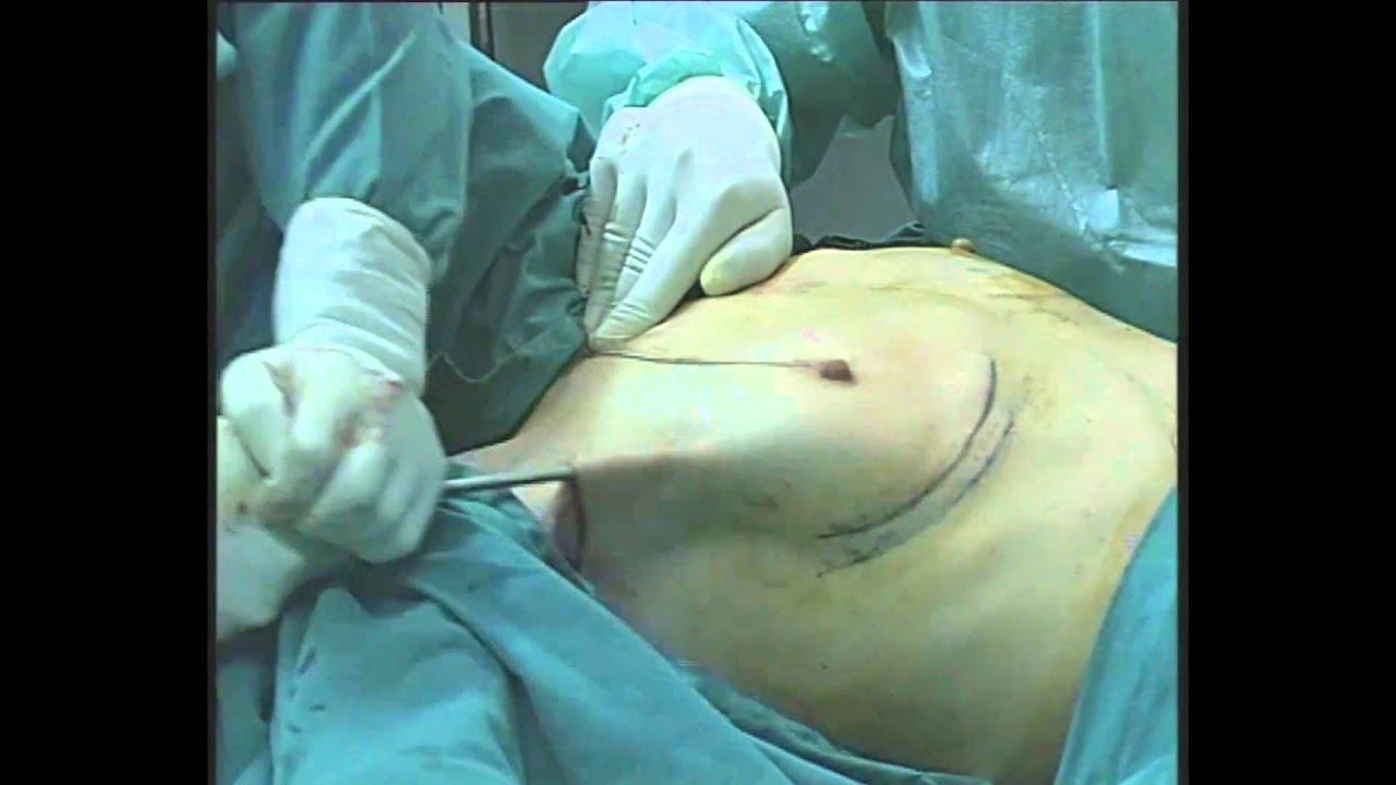 aumento_mamas_axila Aumento de mamas via axilar - YouTube