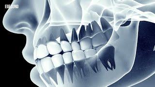 Arthrose im Kiefergelenk: Was steckt dahinter?