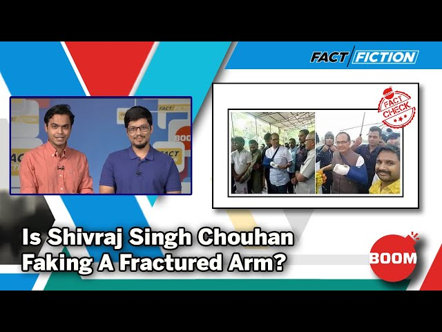 Is Shivraj Singh Chouhan Faking A Fractured Arm?