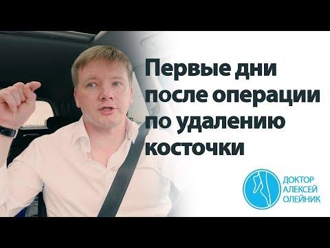 ВАЖНО: первые дни после операции по удалению косточки | Доктор Алексей Олейник