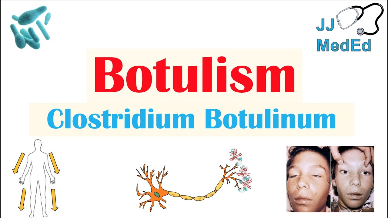 botulism is caused by cancer antigen benign
