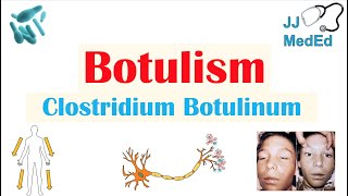 botulism și viziune