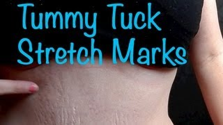Tummy Tuck Stretch Marks