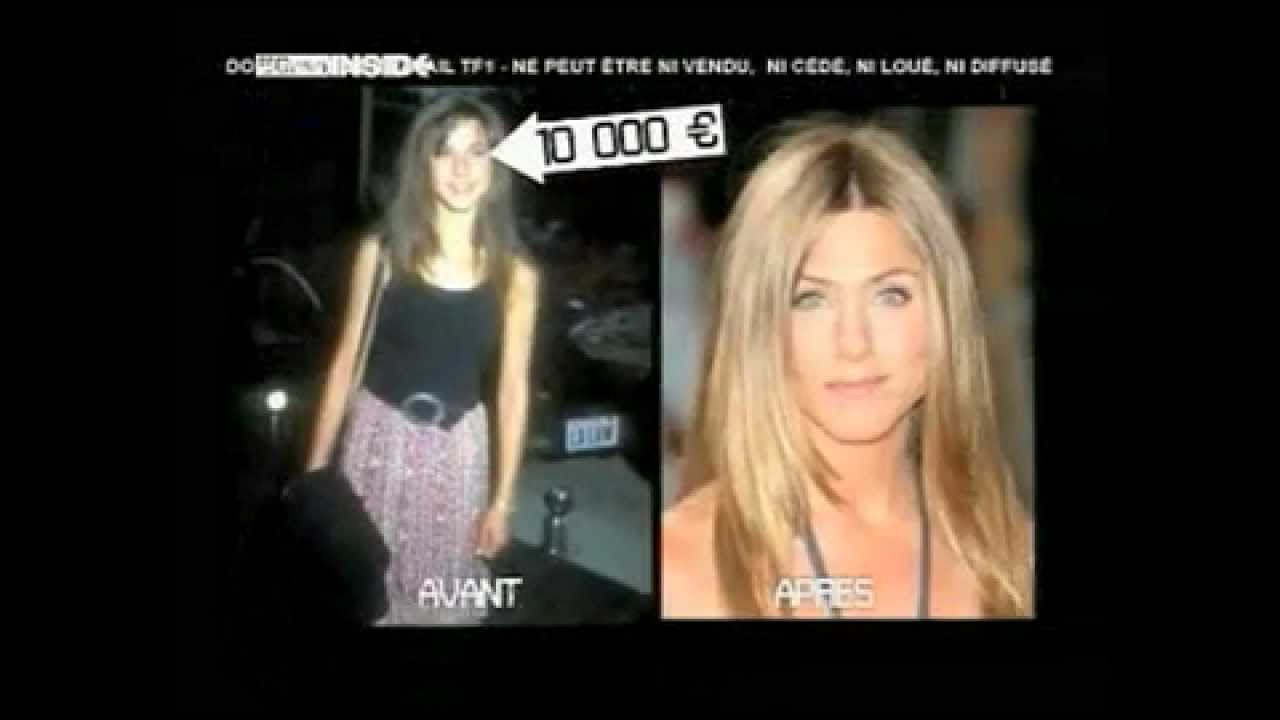 Celebrity Plastic Surgery French Tv Show On Rodeo Drive Plastic