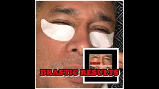Results: Earth Therapeutics Hydrogel Collagen Under Eye Patch