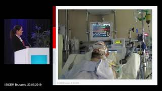 Why inhaled sedation makes sense for the critically ill patient, fascilitating the ABCDEF bundles