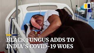 The black fungus nightmare facing India's coronavirus patients