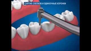 Как отпрепарировать зуб и снять слепки для изготовления коронок  Ортопедическая стоматология