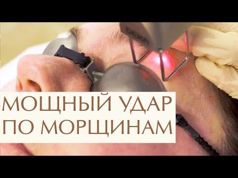 💆  Что такое лазерное омоложение лица, этапы процедуры. Лазерное омоложение лица что это. 12+