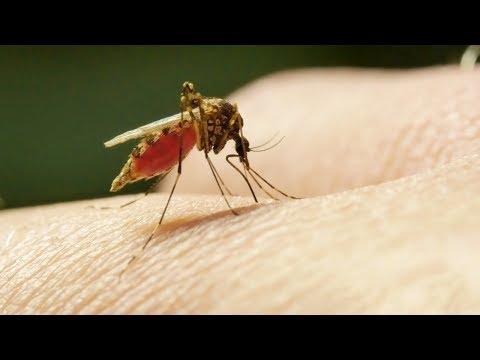 Чем мазать укусы комаров: 6 действенных способов избавиться от зуда