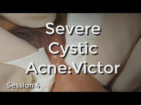 Severe Cystic Acne - Victor: Session #4