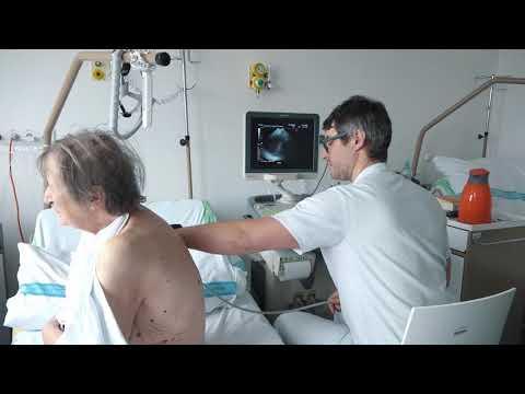 Cesta pacienta s CHOPN