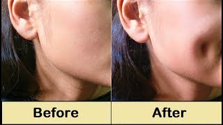 How To Get Dimples Fast & Naturally - Simple Facial Exercise to get Dimples without Surgery