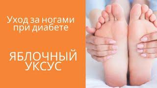 Уход за ногами при диабете Яблочный уксус
