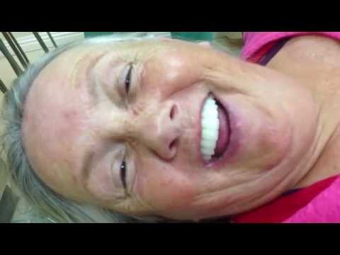 Dental Implants - Full Mouth Reconstruction - Los Angeles, CA