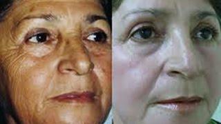 Máscara Caseira Efeito Botox, Anti- Rugas Para O Rosto.EXCELENTE.