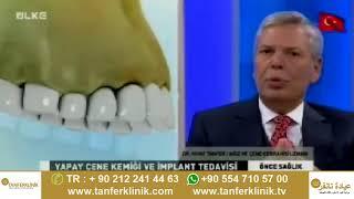 Diş eti çekilmesi nedir , Diş kayıpları için implant tedavisi nasıl olur ? Dr.Nihat Tanfer