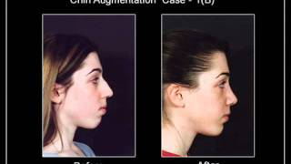 Chin and Cheek Augmentation Toronto