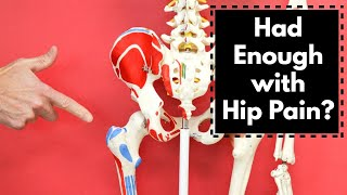 I Had Enough of Hip Pain! 3 Things That Worked