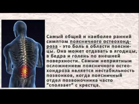 остеохондроз-история болезни