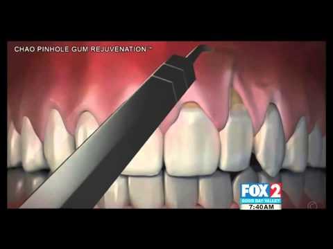 McAllen Pinhole Surgical Technique Gum Rejuvenation